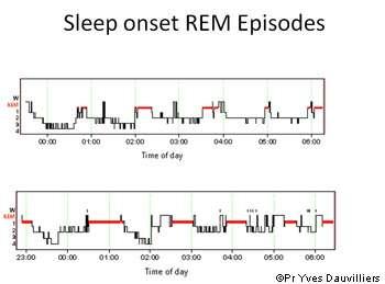 L'enregistrement polysomnographique du sommeil permet notamment de déterminer les cycles du sommeil et ses différentes phases. © Pr Yves Dauvilliers