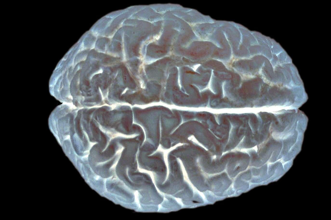 Le cerveau cache encore de nombreux mystères. Dans cette étude, les chercheurs ont découvert un gène impliqué dans les facultés intellectuelles, qui affecterait le développement du cortex. © EUSKALANATO / Flickr - Licence Creative Commons (by-nc-sa 2.0)