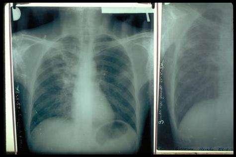 Poumons de patient atteint de tuberculose.