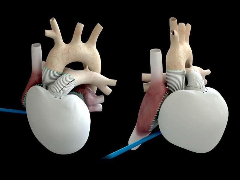 Le cœur artificiel de Carmat reproduit la forme de cet organe. Les membranes en contact avec le sang sont microporeuses et portent des protéines rendant l'organe hémocompatible. Est ainsi évité le risque d'accident thrombotique, principale limite des prototypes de cœur artificiel développés jusqu'à présent. © Carmat