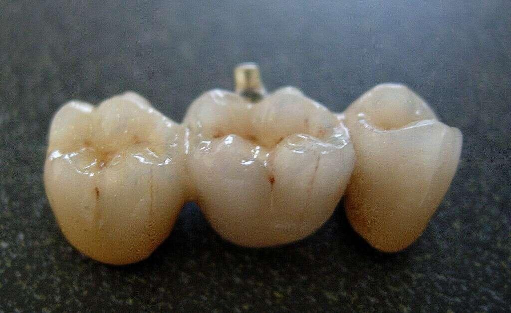Le bridge est assez pratique pour remplacer une dent manquante mais il est relativement coûteux. Ici, on peut voir un bridge constitué de trois éléments en porcelaine. Plus le bridge est long et plus le risque de cassure est important. © Wagonerj, Wikipedia, cc by sa 3.0