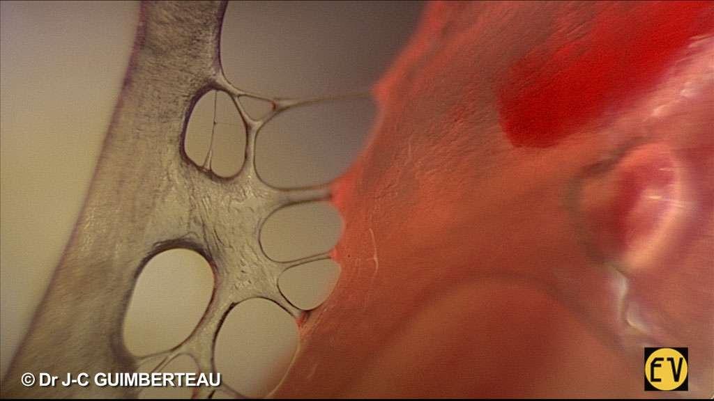Filmer sous une peau vivante : c'est ce que fait le docteur Jean-Claude Guimberteau depuis 20 ans. En vidéo et en image, il a capté un monde méconnu, même de la médecine. Pour les professionnels de la santé, c'est une balade instructive, mais c'est aussi un voyage fantastique dans un univers étonnant. © Jean-Claude Guimberteau