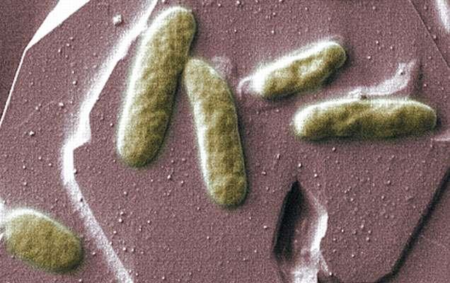 Les bactéries marines Shewanella oneidensis produisent un courant électrique en respirant. Elles peuvent en plus construire des réseaux de nanofilaments pour conduire leurs électrons à distance, par exemple vers des congénères en contact avec des métaux. © Pacific Northwest National Laboratory