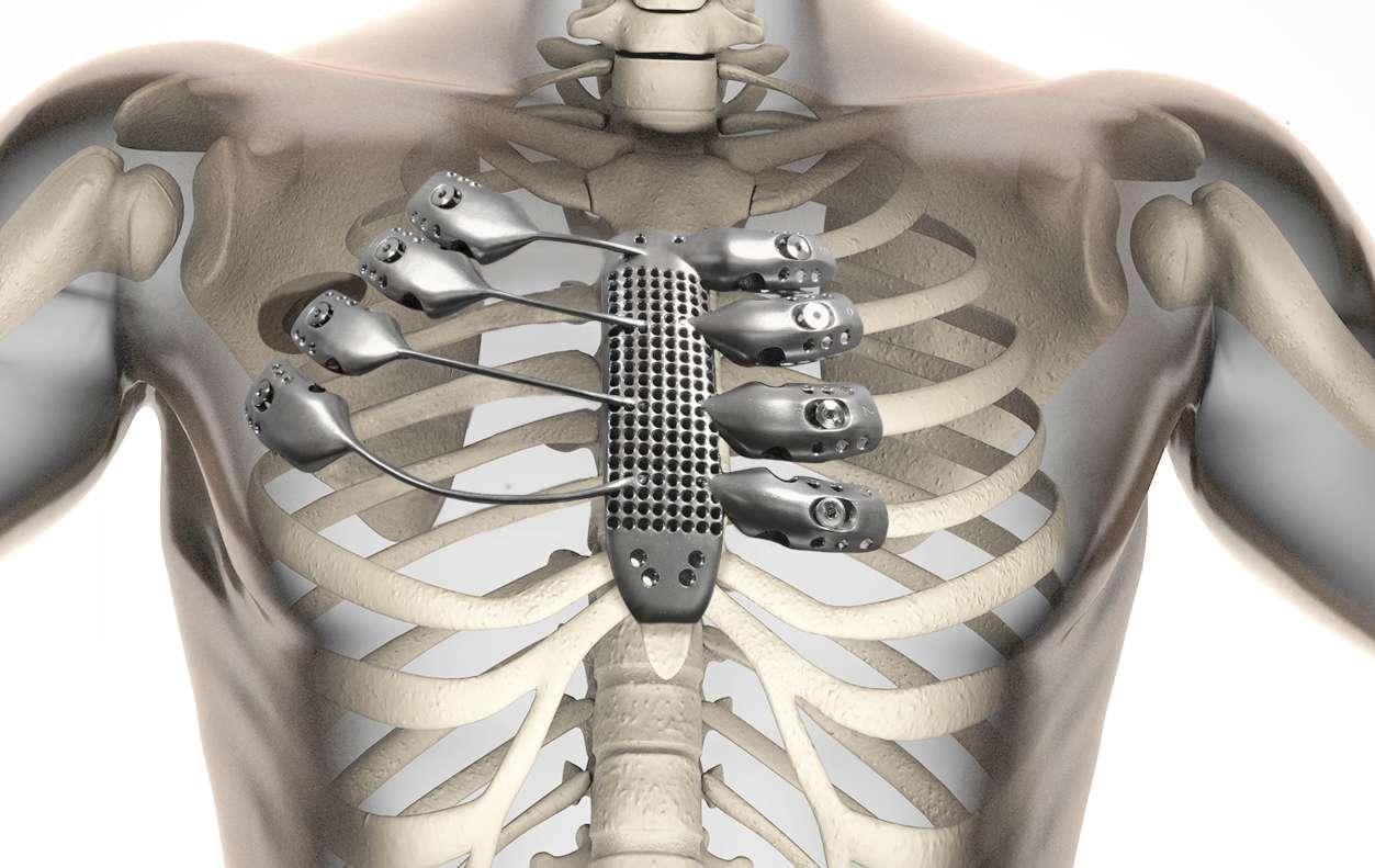 Un sternum et des côtes ont été imprimés en 3D en Australie et implantés dans un patient espagnol. © Anatomics