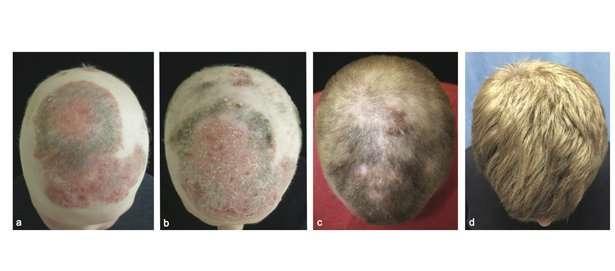 Ce patient totalement glabre (image de gauche) a bénéficié d'un tout nouveau traitement qui a conduit à la repousse des cheveux. Les images suivantes montrent sa tête après deux, cinq et huit mois de traitement. © Yales