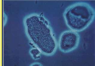 MicrobeCrédit : http://www.biotech2000.com
