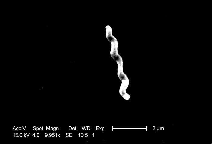 Ceci n'est pas une pâte. Il s'agit de la bactérie intestinale Campylobacter jejuni, connue depuis 2007 pour engendrer l'anxiété chez la souris. Or, on sait que chez certains, l'humeur interfère beaucoup avec l'appétit, dans un sens comme dans l'autre... © P. Fields, C. Fitzgerald, CDC, DP