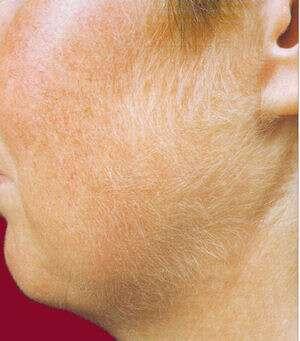 L'hirsutisme se manifeste par l'apparition de nombreux poils dans les zones caractéristiques de la pilosité masculine.