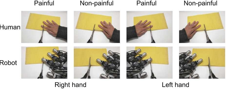 Les volontaires ont regardé différentes photographies montrant une main d'humain ou de robot, dans une situation douloureuse ou pas. © Suzuki et al., Nature/em> 2015