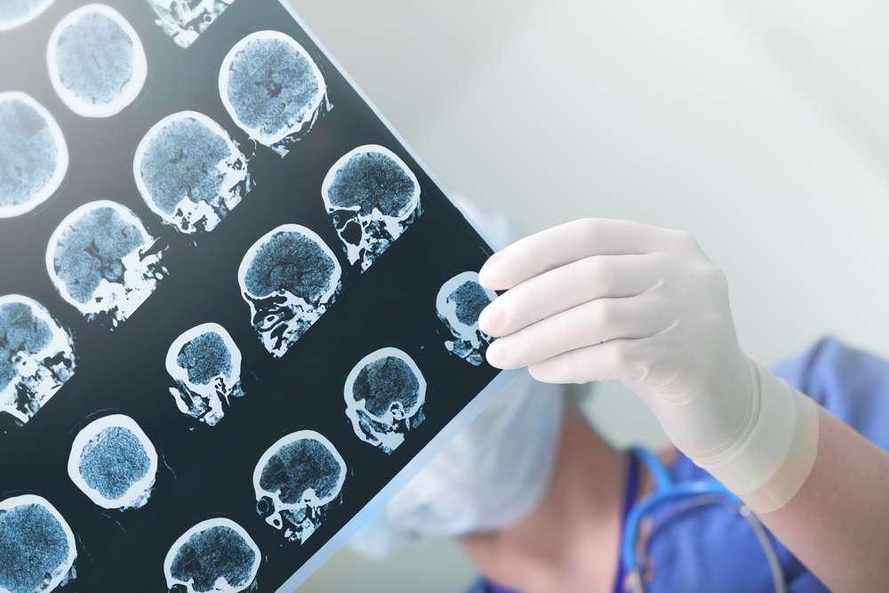 En France, 150.000 personnes sont victimes d'AVC chaque année. Les facteurs de risque sont l'âge, les antécédents familiaux, le diabète, l'hypertension artérielle, le tabagisme, un taux élevé de cholestérol, l'obésité et le surpoids. © sfam_photo, Shutterstock