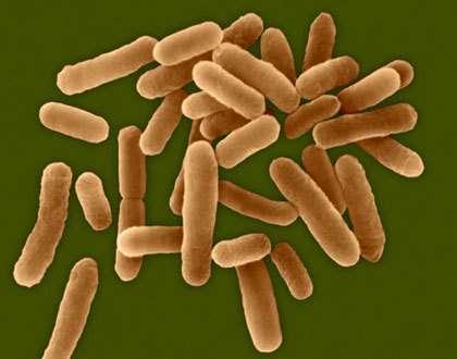 legionella pneumophilia © Dennis Kunkel Microscopy Inc