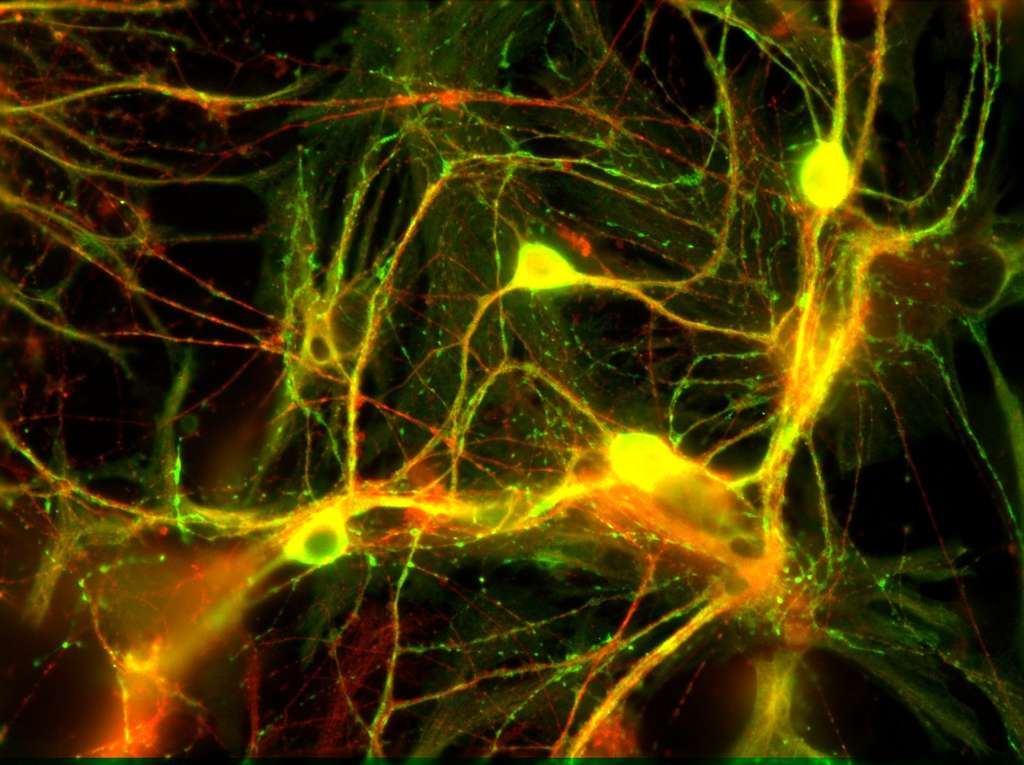 Quand le cerveau reprend des couleurs, il paraît tout de suite plus merveilleux, à l'image de ces neurones de l'hippocampe de souris. Cliquez sur l'image pour accéder au diaporama. © Fabrice Duprat, CNRS Photothèque