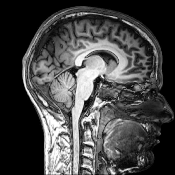 Selon l'étude danoise, l'utilisation du téléphone portable ne serait pas un facteur de risque de tumeur cérébrale. © everyone's idle, Flickr CC by sa 2.0
