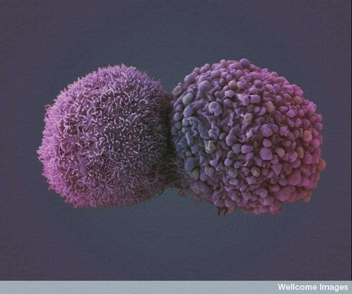 Les cellules cancéreuses peuvent apparaître bien des années après une infection virale. Le HPV est connu pour être à l'origine des cancers du col de l'utérus et dans certains cas de cancers de la gorge. © Anne Weston, Wellcome Images, Flickr, cc by nc nd 2.0