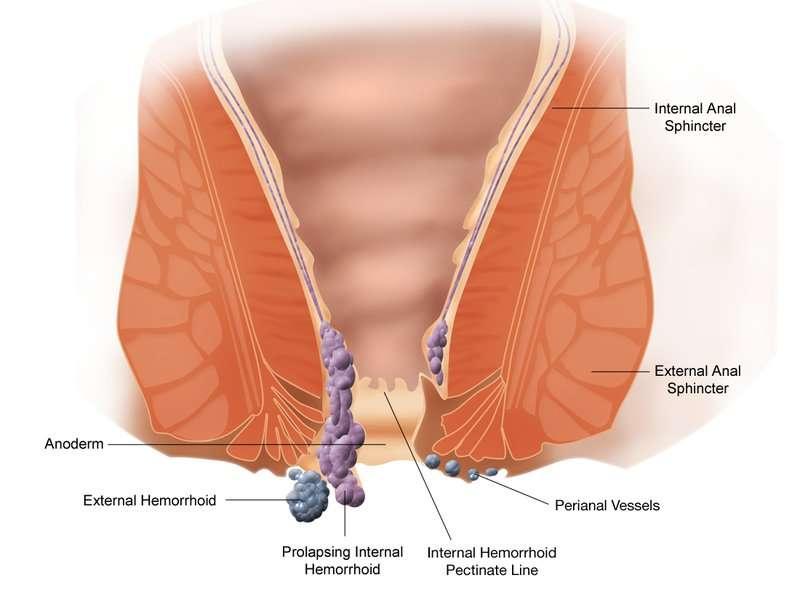 Schéma d'hémorroïdes. © Wikipedian Prolific, CC by-sa 30