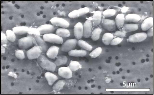 La bactérie GFAJ-1 cultivée avec de l'arsenic mais pas de phosphore. © Jodi Switzer Blum
