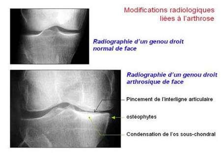 Observation d'un genou arthrosique grâce à la radiographie. Source : Société Française de Rhumatologie