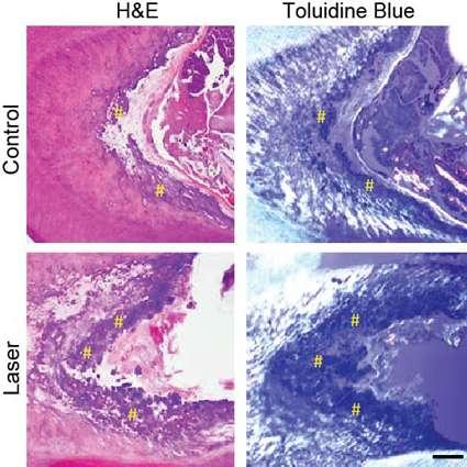 Coupes histologiques avec deux colorations différentes montrant la formation d'ivoire de reconstruction dans la dent de rat, en condition contrôle et 12 semaines après traitement par laser à basse puissance. Les # jaunes mettent en évidence l'ivoire nouvellement généré. © Harvard's Wyss Institute and SEAS
