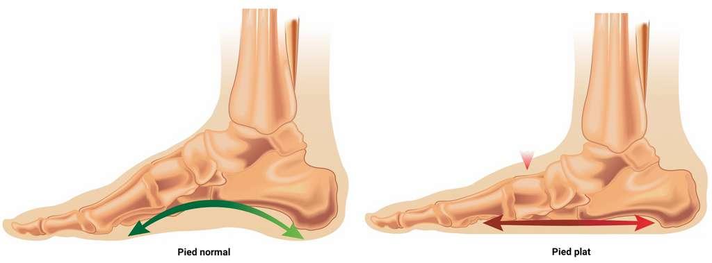 La hauteur de la courbure de l'arche longitudinale du pied peut varier du simple au double selon les individus. © rob3000, Adobe Stock - adaptation C.D