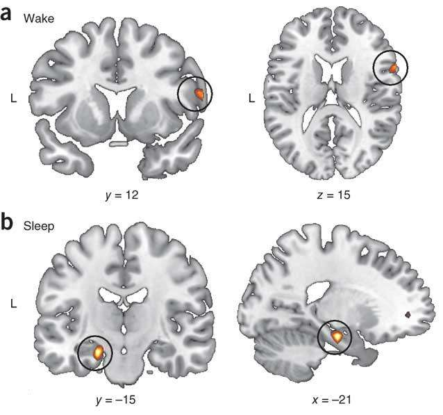 Les zones du cerveau activées pendant la réactivation du souvenir ne sont pas les mêmes en éveil ou pendant le sommeil. Le cortex préfrontal droit est activé en éveil (a), alors que c'est l'hippocampe gauche qui est préférentiellement activé pendant le sommeil (b). © Nature Neuroscience