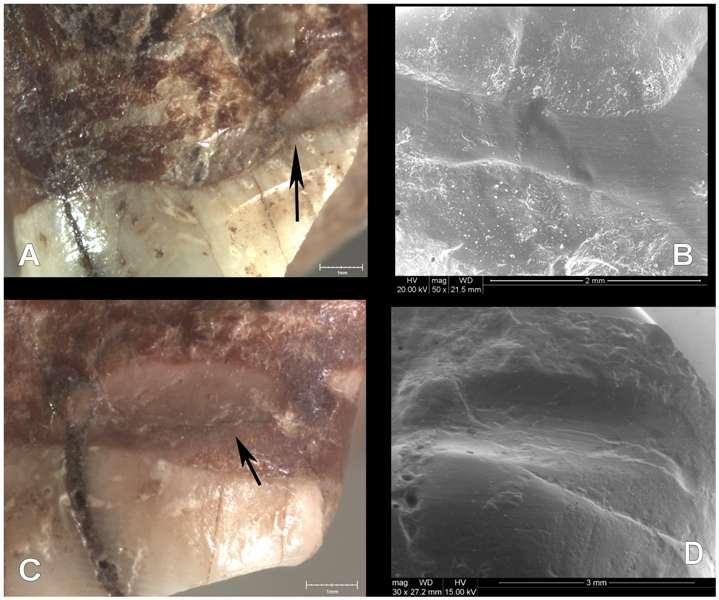 La rainure interdentaire et la trace de l'utilisation d'un cure-dent à des fins médicales, visibles sous plusieurs angles. © Lozano et al., Plos One, 2013