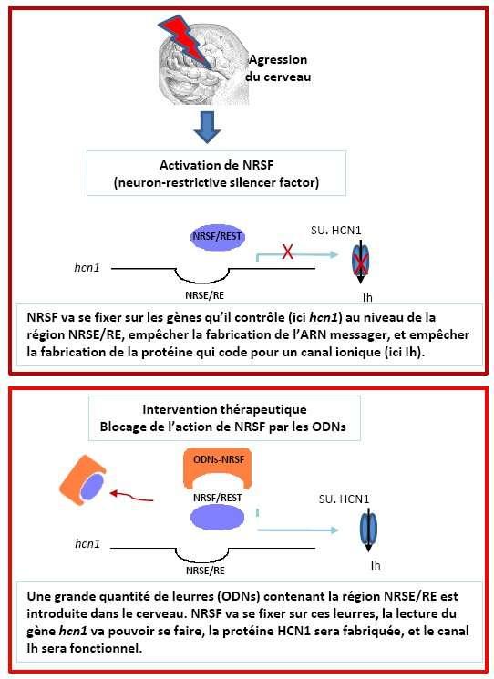 Contrôler le gène NRSF permettrait de maîtriser l'épilepsie. © Inserm