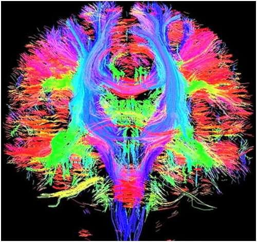 Fibres axonales visualisées par imagerie de diffusion. © Springer-Verlag 2009