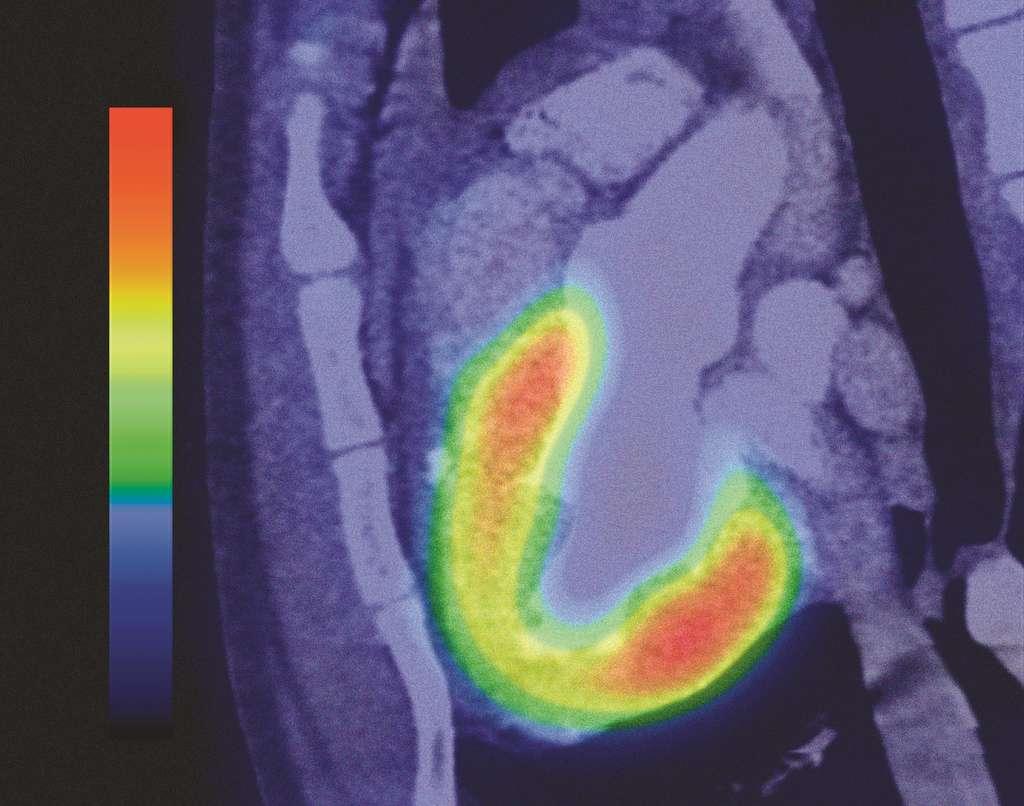 Les cellules tumorales sont de grandes consommatrices de glucose. Ainsi, en injectant du glucose marqué au fluor radioactif, on peut visualiser les régions dévoreuses de sucre et en déduire la localisation des tumeurs... Cliquez sur l'image pour voir l'ensemble de la galerie photo. © CNRS Photothèque - Ci-Naps - Gip Cyceron, Alain Manrique