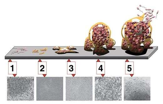 Les cinq étapes du développement d'un biofilm sur une surface dure. Étape 1 : attachement initial ; étape 2 : attachement irréversible ; étape 3 : apparition et maturation I du biofilm ; étape 4 : maturation II ; étape 5 : dispersion. Les photomicrographies (toutes à même échelle) sont celles d'un biofilm de Pseudomonas aeruginosa en développement. © D. Davis CC paternité 2.5 générique