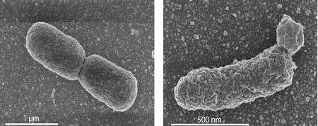 Des irrégularités sont observées au niveau de la membrane cellulaire des bactéries génétiquement modifiées (à droite), lorsque la production de lipides archéens est trop importante. À titre de comparaison, la membrane des bactéries E. coli normales (à gauche) est lisse. Les images sont obtenues au microscope électronique à balayage. © University of Wageningen/Van der Oost Laboratory