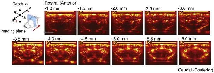Visualisation de la vascularisation d'un cerveau de rat, sur différents plans, après injection de microbulles par imagerie doppler ultrasensible. Recherche à paraître dans NeuroImage en janvier 2016. © Errico et al. 2016, NeuroImage