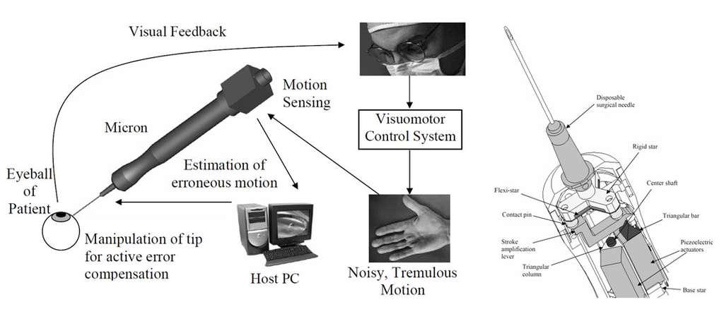 Schéma de principe du système Micron pour l'assistance à la microchirurgie. On exploite ici le principe de comanipulation série. © WeiTech Ang