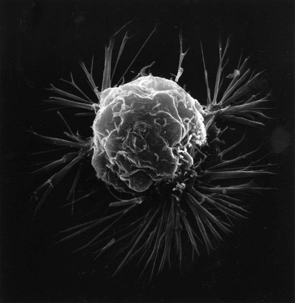 Image de microscopie électronique d'une cellule cancéreuse. Quand ces cellules ne cessent de se multiplier, ceci aboutit à la formation d'une tumeur. © National Cancer Institute, Wikimedia Commons, cc by sa 3.0