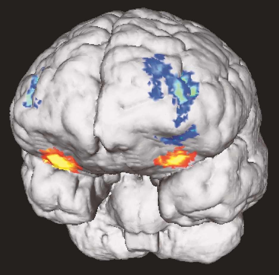 L'IRM fonctionnelle, l'outil pour lire dans les pensées