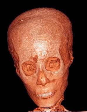 Reconstitution du crâne de Toutankhamon à partir de 1.700 images réalisées à l'aide d'un scanner de type médical (un tomographe) installé dans un camion pour une analyse effectuée en 2005 lors d'une brève sortie de la momie. (Cliquer sur l'image pour afficher l'article.) © SDA