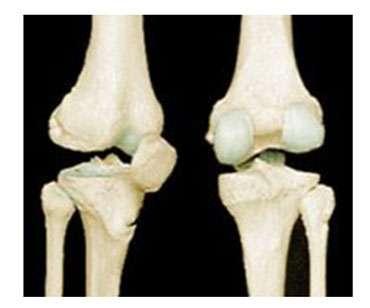 Articulation du genou. Source : UFR STAPS des Antilles et de la Guyane