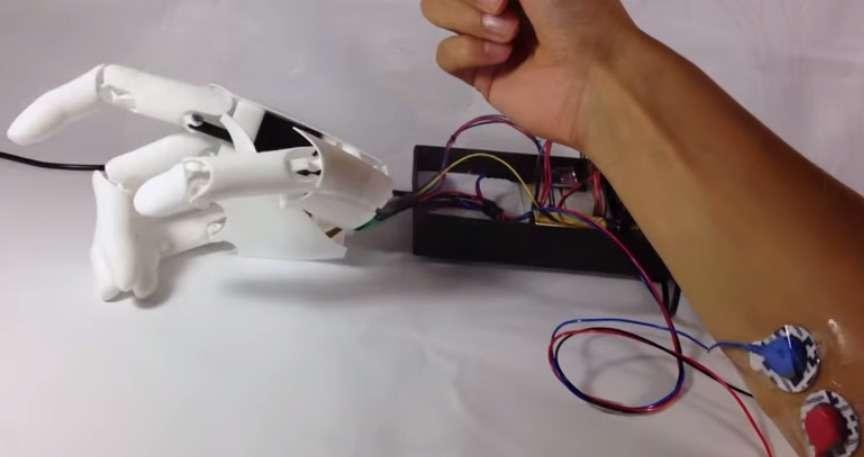 La main myoélectrique Youbionic est contrôlée par la contraction des muscles captée par deux électrodes. Ses concepteurs assurent que la structure en plastique peut être fabriquée en une seule impression et d'une pièce. © Youbionic