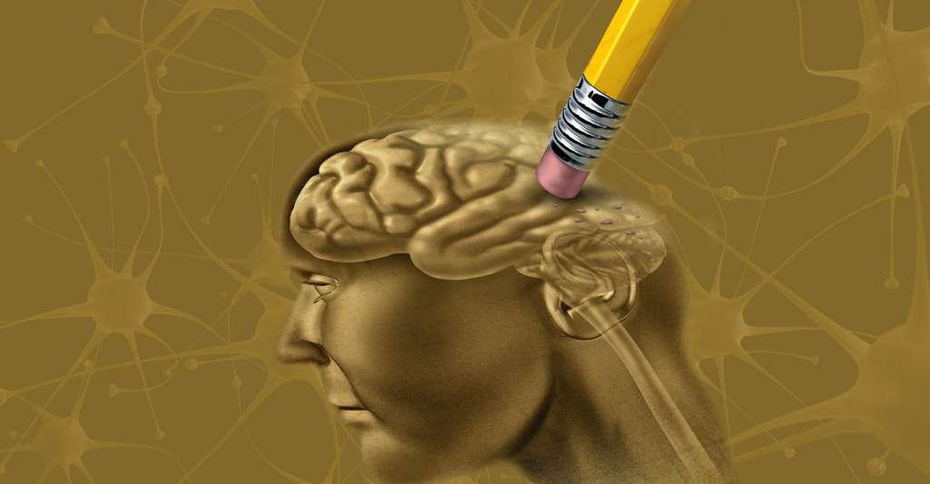 Quels sont les espoirs pour combattre la malade d'alzheimer ? © Freshidea - Fotolia