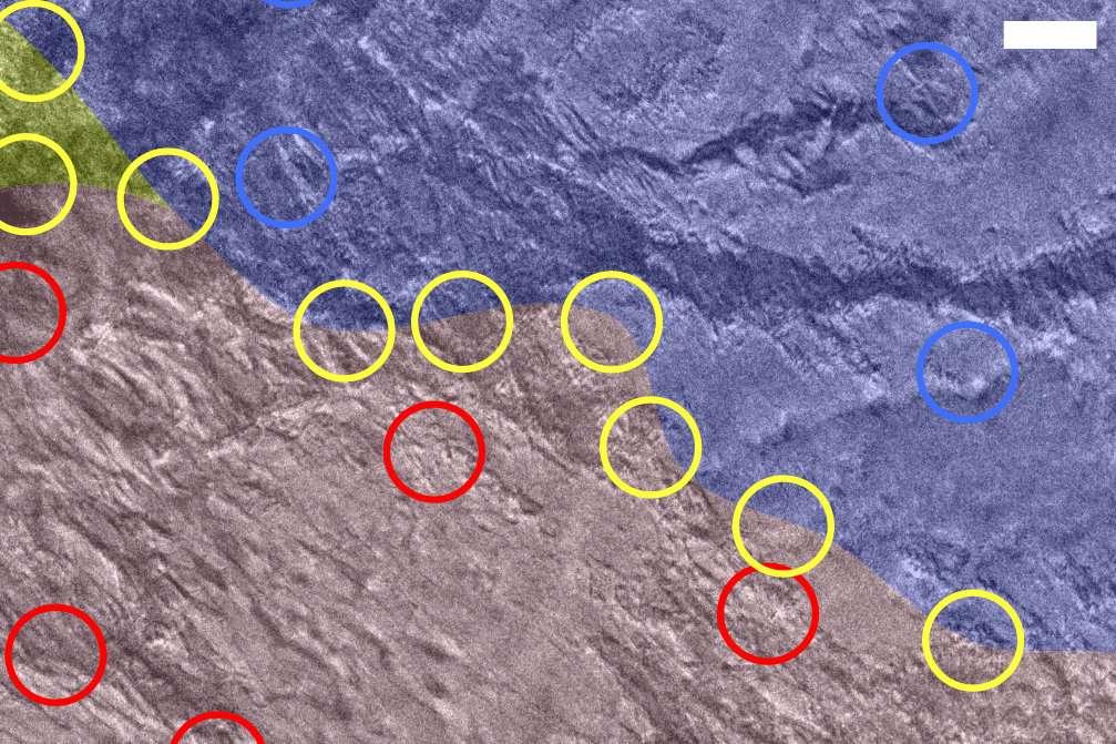 Cette image en microscopie électronique à transmission montre une paroi de domaine (marquée de cercles jaunes) entre deux états différents, alpha (zone rouge) et bêta (zone bleue), dans un cristal de disulfure de tantale. L'état bêta et la paroi du domaine apparaissent formés après que le cristal a été frappé avec une seule impulsion lumineuse. © SLAC, Stanford University