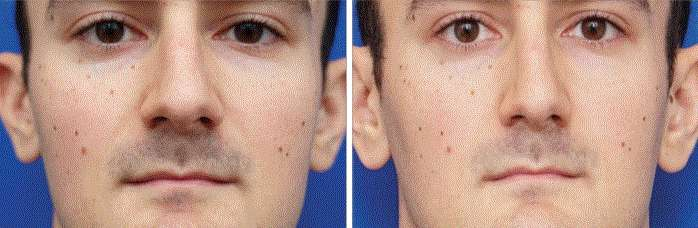 À gauche, un portrait pris à une distance de 30 centimètres et à droite, le portrait de la même personne pris à une distance de 1,50 mètre. Les images parlent d'elles-mêmes. © Boris Paskhover, Rutgers New Jersey Medical School