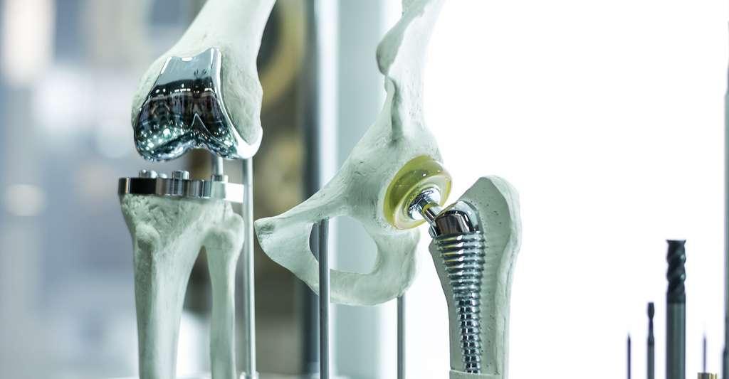 Implants ou prothèses, circuits imprimés, hublots d'observation, isolants hermétiques, tubes et tuyaux. L'oxyde d'aluminium (Al2O3), ou alumine, est sans doute le matériau céramique de haute performance le plus utilisé par l'industrie. Et c'est encore sur lui que comptent les chercheurs pour concevoir un revêtement pour sécuriser les réacteurs nucléaires de demain. © monstArr, Shutterstock