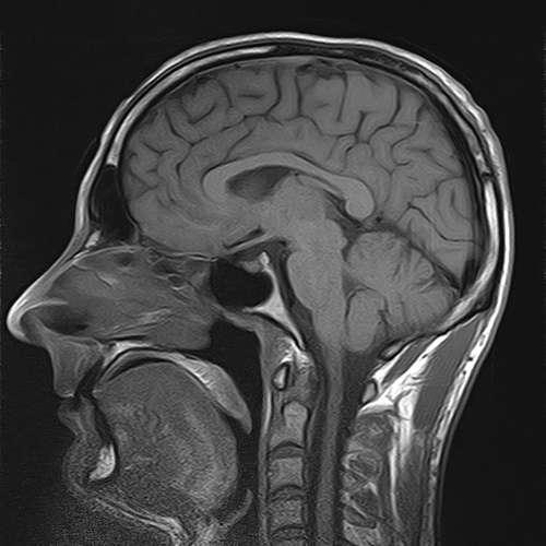 La sclérose en plaques, maladie qui touche le système nerveux, atteint entre 65.000 et 90.000 personnes en France. © Ben Besk