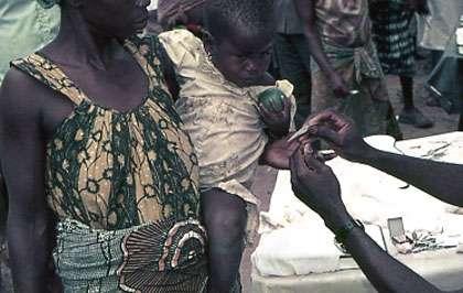 Photo : 25 - Collecte de sang à l'extrémité d'un doigt pour des tests immunologiques (immunofluorescence indirecte). © Gérard Duvallet.