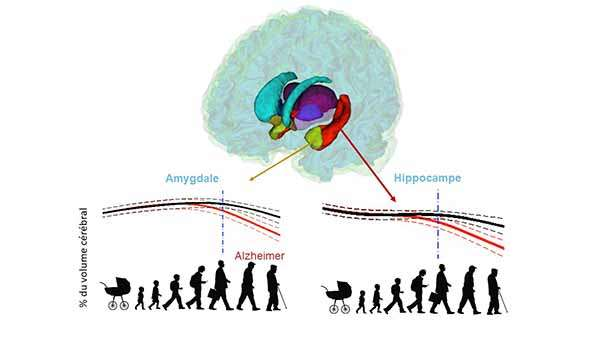 Sur ce dessin, la diminution du volume de l'hippocampe et de l'amygdale chez les personnes atteintes de la maladie d'Alzheimer, en comparaison avec des personnes saines. © Pierrick Coupé, LABRI, CNRS, Bordeaux INP, Université de Bordeaux