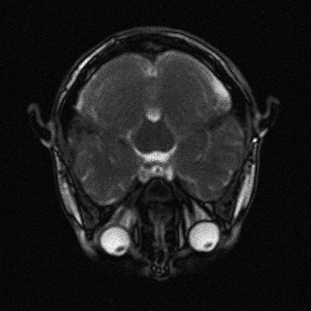 IRM montrant des yeux globuleux