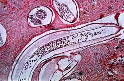 Nodule micro onchocercose. © Reproduction et utilisation interdites