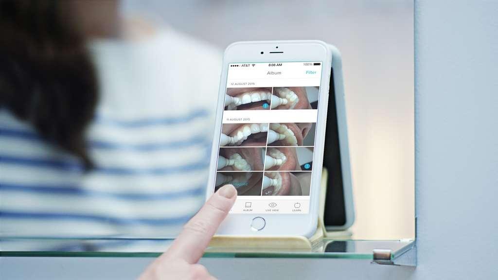 La caméra intégrée à la brosse à dents Prophix filme en full HD 1080p et transmet l'image directement sur l'écran d'un smartphone. On peut également prendre des photos de ses quenottes pour les étudier de près. © Onvi