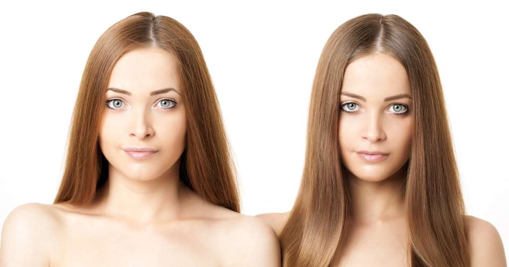 Des études chez les jumeaux et jumelles identiques montrent le caractère héréditaire des troubles alimentaires. © Miramiska, Shutterstock