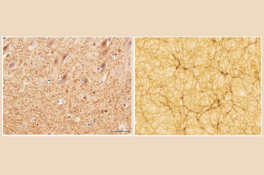 À gauche, une section du cervelet grossie 40x. À droite, une simulation cosmologique de l'Univers (portion de 300 millions d'années). © Université de Bologne