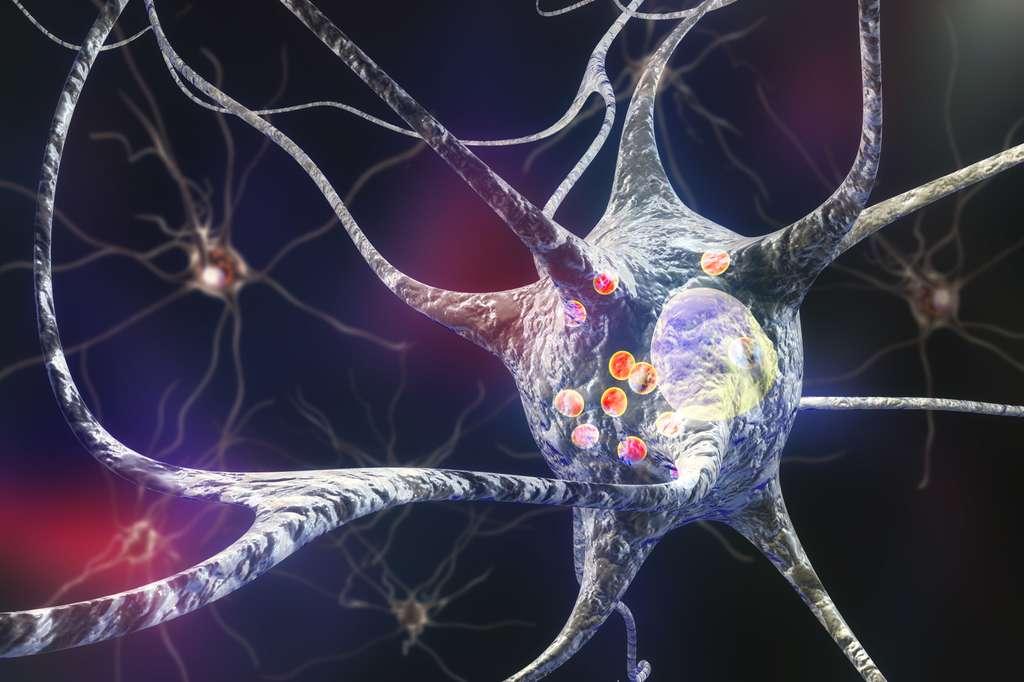 Illustration d'un neurone où les corps de Lewy sont représentés par les sphères rouges. Les corps de Lewy sont des amas protéiques d'alpha-synucléine toxiques pour les neurones. © Kateryna_Kon, Adobe Stock